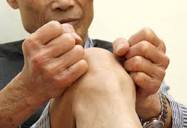 Biến chứng nguy hiểm của bệnh thấp khớp, viêm đa khớp dạng thấp
