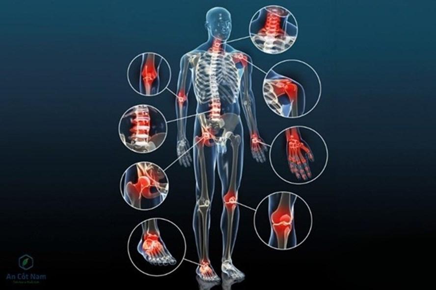 Thoái hóa khớp nguyên nhân, triệu chứng chẩn đoán và cách điều trị hiệu quả
